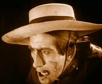 The 'mark of Zorro' - a Z